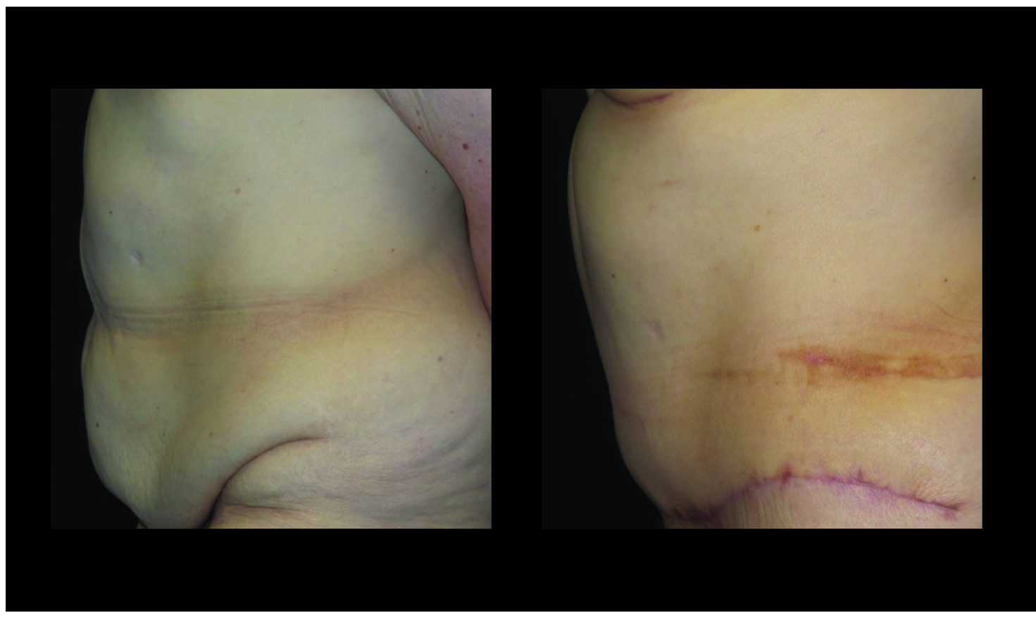 Atlanta Post Bariatric Surgery Patient 38 Before & After