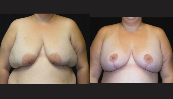 Atlanta Post Bariatric Surgery Patient 25 Before & After