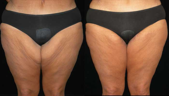 Atlanta Post Bariatric Surgery Patient 1 Before & After