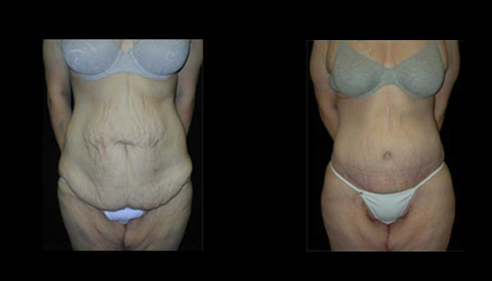 Atlanta Post Bariatric Surgery Patient 10 Before & After