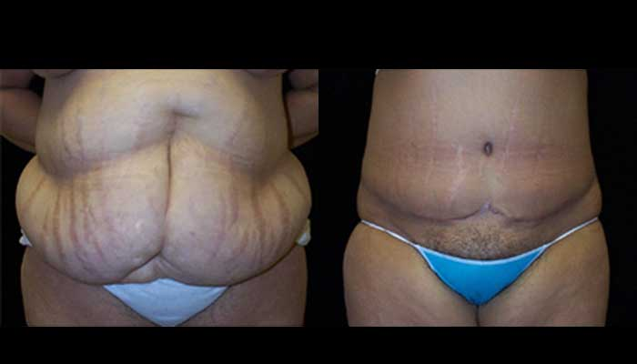 Atlanta Post Bariatric Surgery Patient 11 Before & After