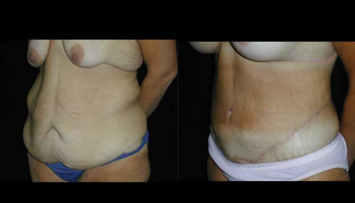 Atlanta Post Bariatric Surgery Patient 12 Before & After