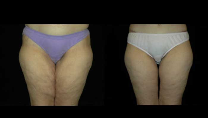 Atlanta Post Bariatric Surgery Patient 13 Before & After