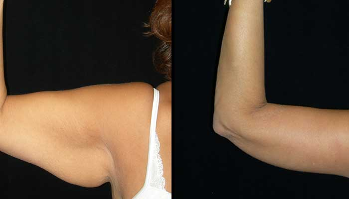 Atlanta Post Bariatric Surgery Patient 4 Before & After
