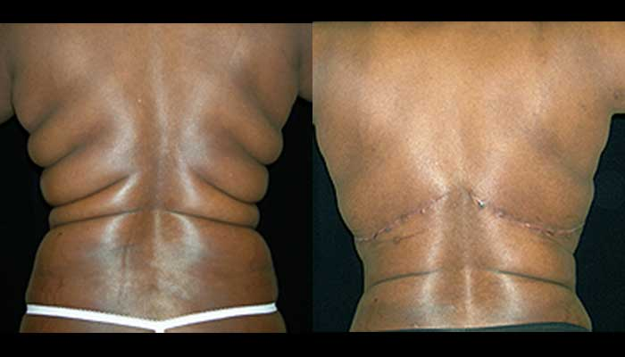 Atlanta Post Bariatric Surgery Patient 5 Before & After