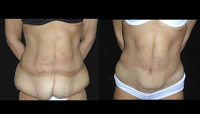 Atlanta Post Bariatric Surgery Patient 07 Before & After