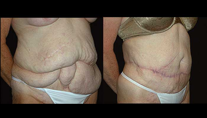 Atlanta Post Bariatric Surgery Patient 09 Before & After