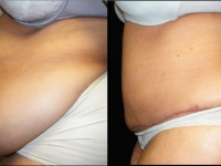 Atlanta Post Bariatric Surgery Patient 16 Before & After