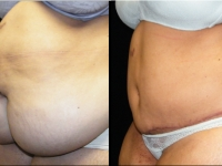 Atlanta Post Bariatric Surgery Patient 18 Before & After
