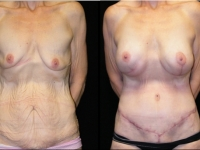 Atlanta Post Bariatric Surgery Patient 19 Before & After
