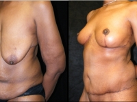Atlanta Post Bariatric Surgery Patient 20 Before & After