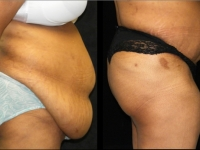 Atlanta Post Bariatric Surgery Patient 21 Before & After