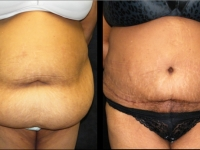 Atlanta Post Bariatric Surgery Patient 22 Before & After