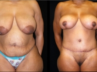 Atlanta Post Bariatric Surgery Patient 28 Before & After