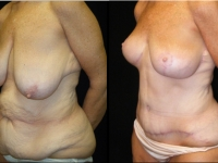 Atlanta Post Bariatric Surgery Patient 29 Before & After