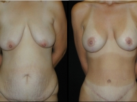 Atlanta Post Bariatric Surgery Patient 26 Before & After