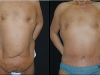 Atlanta Post Bariatric Surgery Patient 32 Before & After
