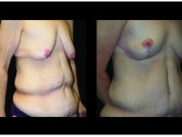 Atlanta Post Bariatric Surgery Patient 35 Before & After