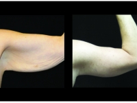Atlanta Post Bariatric Surgery Patient 33 Before & After