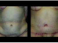 Atlanta Post Bariatric Surgery Patient 37 Before & After