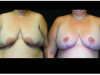 Atlanta Post Bariatric Surgery Patient 24 Before & After