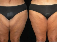 Atlanta Post Bariatric Surgery Patient 01 Before & After