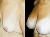 Atlanta Post Bariatric Surgery Patient 03 Before & After