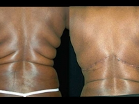Atlanta Post Bariatric Surgery Patient 05 Before & After