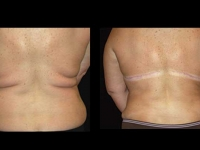 Atlanta Post Bariatric Surgery Patient 06 Before & After