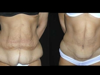 Atlanta Post Bariatric Surgery Patient 7 Before & After