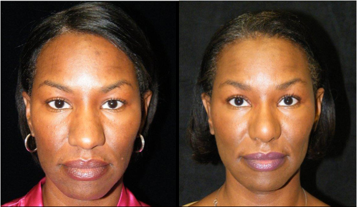 Atlanta Rhinoplasty Patient 18 Before & After