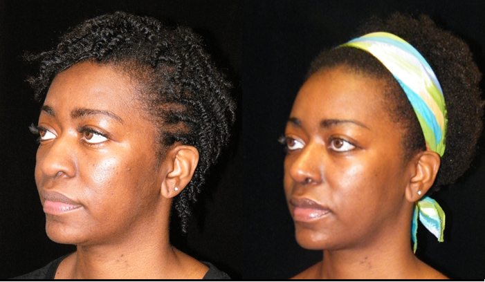 Atlanta Rhinoplasty Patient 20 Before & After