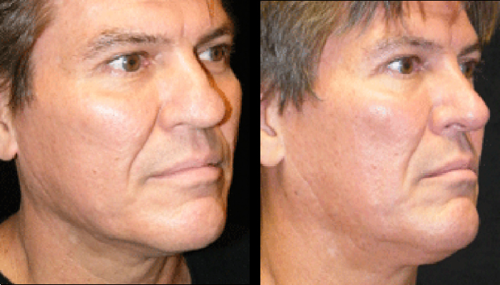 Atlanta Rhinoplasty Patient 3 Before & After