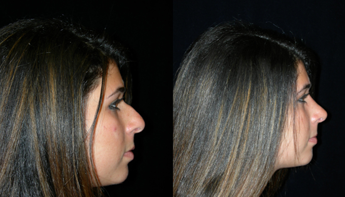 Atlanta Rhinoplasty Patient 24 Before & After