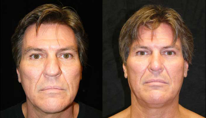 Atlanta Rhinoplasty Patient 2 Before & After