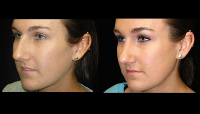 Atlanta Rhinoplasty Patient 4 Before & After
