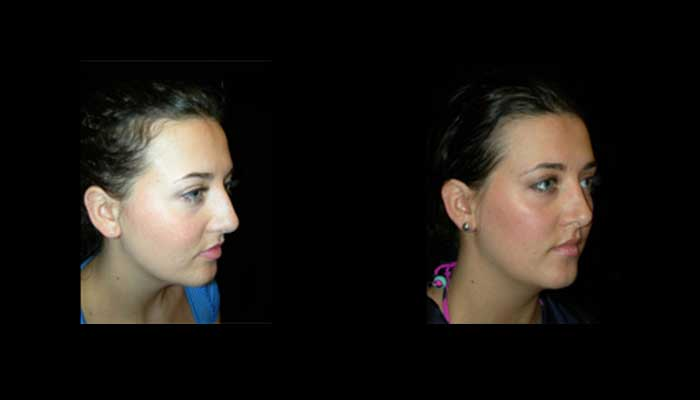 Atlanta Rhinoplasty Patient 6 Before & After