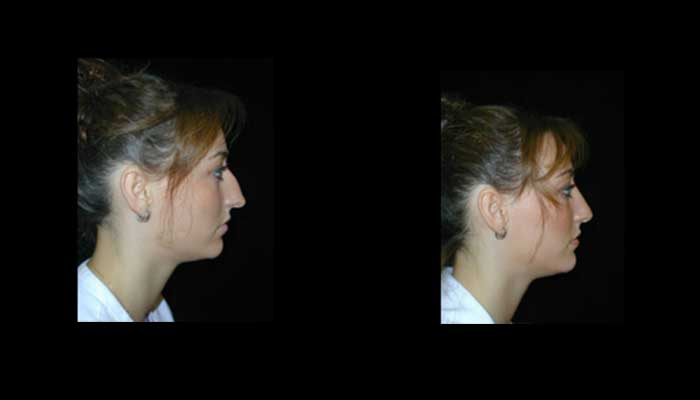 Atlanta Rhinoplasty Patient 7 Before & After