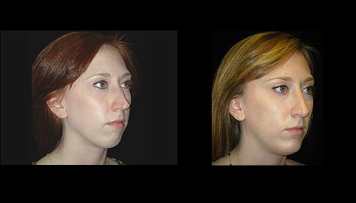 Atlanta Rhinoplasty Patient 8 Before & After