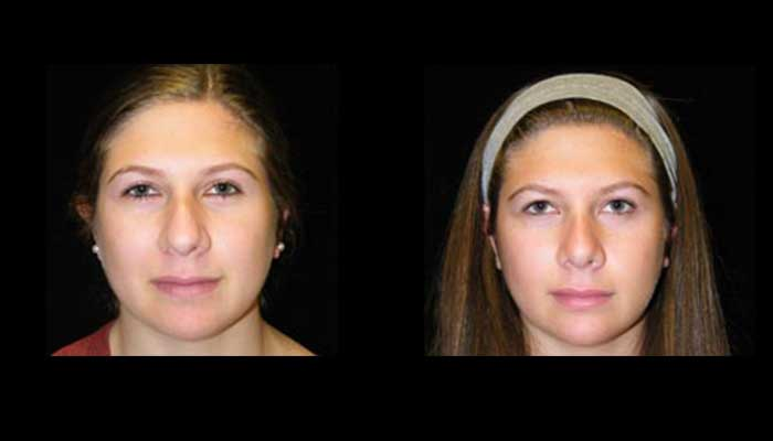 Atlanta Rhinoplasty Patient 11 Before & After
