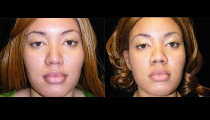 Atlanta Rhinoplasty Patient 12 Before & After