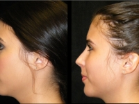 Atlanta Rhinoplasty Patient 13 Before & After