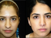 Atlanta Rhinoplasty Patient 14 Before & After