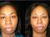 Atlanta Rhinoplasty Patient 16 Before & After