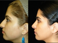 Atlanta Rhinoplasty Patient 21 Before & After