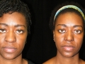 Atlanta Rhinoplasty Patient 23 Before & After