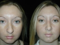 Atlanta Rhinoplasty Patient 25 Before & After