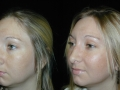 Atlanta Rhinoplasty Patient 26 Before & After