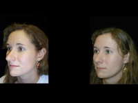 Atlanta Rhinoplasty Patient 9 Before & After