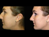 Atlanta Rhinoplasty Patient 5 Before & After
